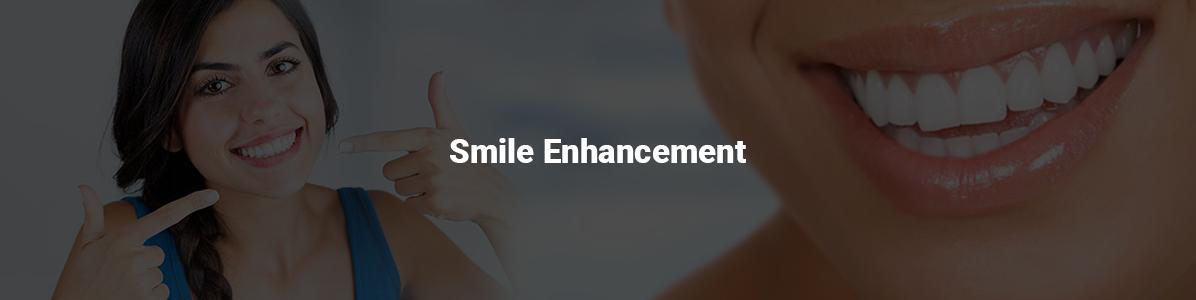 Smile-enhancement