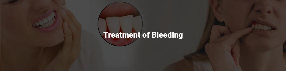 Treatment-Bleeding