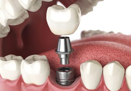 teeth whitings